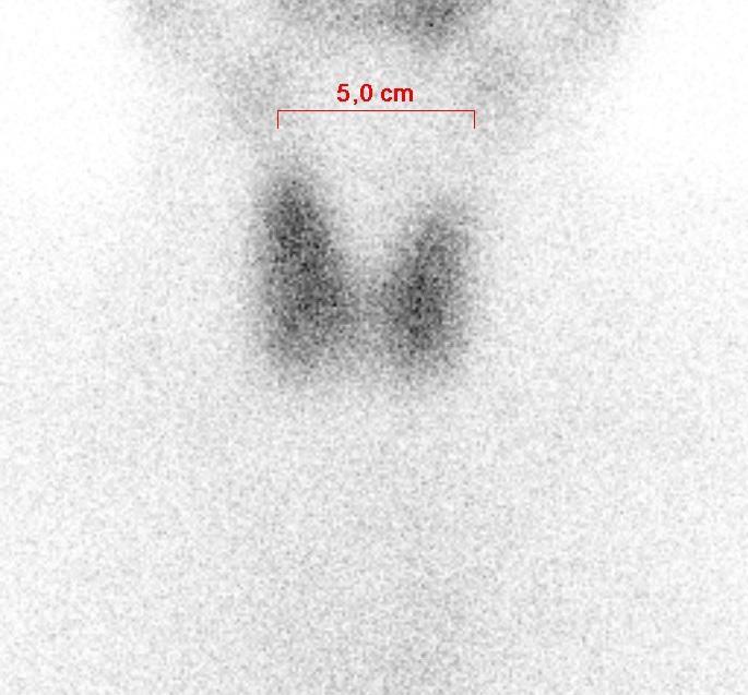 Scintigraphie thyroidienne